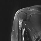 Tumeur à matrice cartilagineuse de l'humérus  IRM Coronal T2 Fat Sat