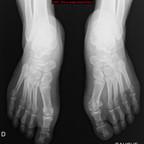 Goutte  Radiographie Membre inférieur
