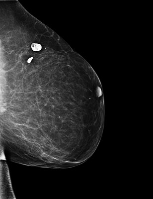 Late recurrence of cancer of the left breast  2-LML