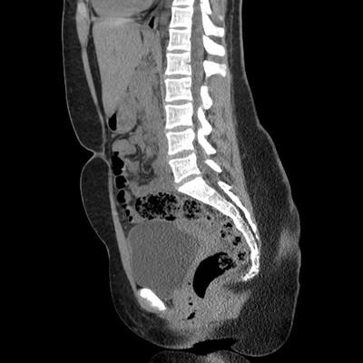 Appendicite aiguë avec péri-appendicite Sagittal