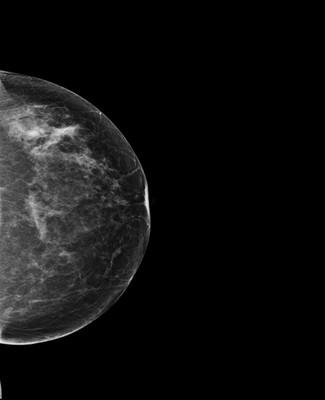 Asymétrie mammaire avec petit nodule dont l'aspect est en faveur d'un fibroadénome au sein d'un tissu glandulaire plus dense à droite. 2-Lcc