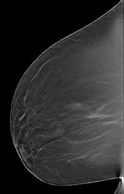Discordance en imagerie avec macrobiopsie sans élément tumoral: décision de surveillance LML Tomosynthèse
