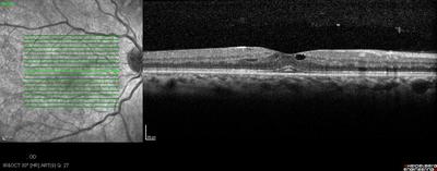 Rétinopathie diabétique préproliférante puis floride bilatérale OCT maculaire OD