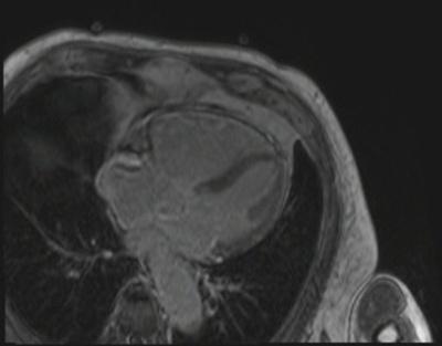 Dysplasie arythmogène du ventriule droit (DAVD) : critère majeur en IRM viabilite_3d_4CAV