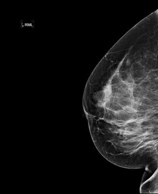 Stable fibroadenomas and hamartoma in the right breast, ACR 2. 5-RML