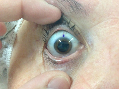 Cataracte sous capsulaire postérieure et astigmatisme cornéen - Implantation multifocale torique Marquage pré opératoire