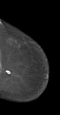 Récidive tardive de cancer du sein gauche LCC Acquisition Tomo