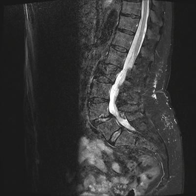 Aggressive vertebral angioma of T6 T2 TSE DIXON SAG_F