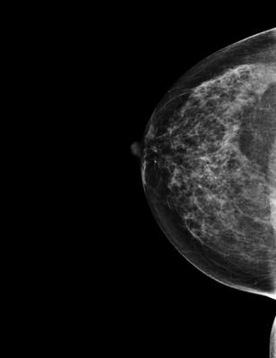 Right upper medial ductal carcinoma in situ RCC