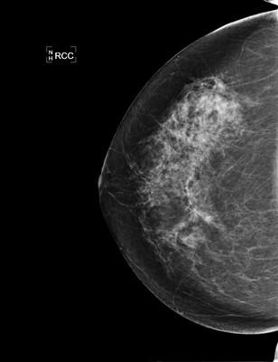 SBR grade 2 infiltrating ductal carcinoma 1-RCC 2008