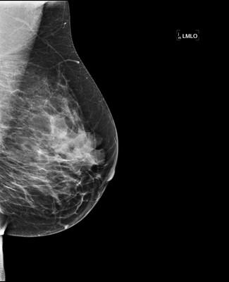 Stable fibroadenomas and hamartoma in the right breast, ACR 2. 4-LMLO