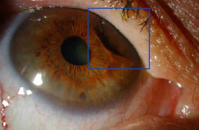 Mélanome iris et corps ciliaire LAF postRxttt et préop PKE OD