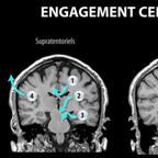 Anatomie du cerveau engagements-cérébraux