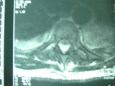 fracture de T3 IRM