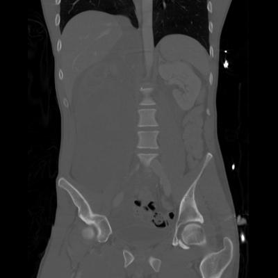 Renal vein rupture, Adrenal hemorrhage Abdomen CT, Coronal plane, Bone window