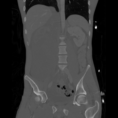 Renal vein rupture, Adrenal hemorrhage Abdomen CT, Coronal plane, Bone window