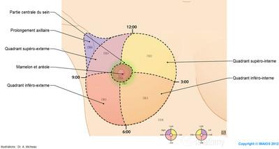 Cancer du sein Quadrants du sein et cotation CIM-10