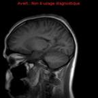 ADEM (encéphalomyélite post infectieuse)  IRM