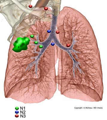 Cancer du poumon N