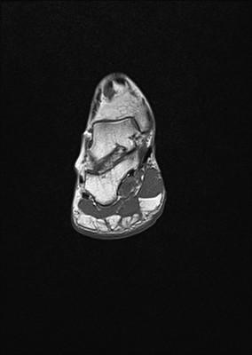 Tendinopathie aiguë achiléenne droite inflammatoire et myoaponévrosite plantaire superficielle T1 Coronal (Cheville)