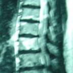asoociation myélopathie  dorsale et canal lombaire étroit sténose dorsale et lombaire