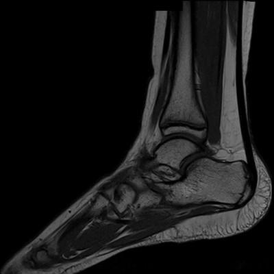 Syndrome de l'os naviculaire accessoire IRM T1 Sagittale