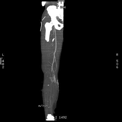 Traumatisme cranien et des membres inférieurs, pneumopathie d'inhalation VR MIP sur le MI droit
