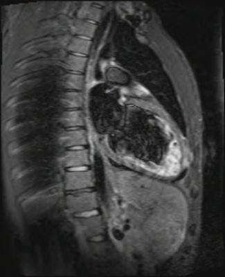 Non compaction du ventricule gauche tirm_15_db_t2++LA