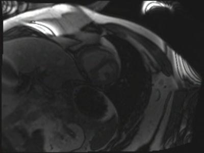 Péricardite chronique constrictive TI-Scout 256