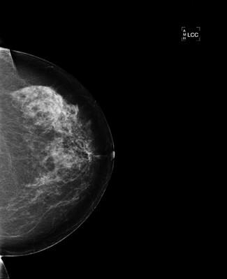 Carcinome canalaire infiltrant de grade SBR 2 7-LCC 2005