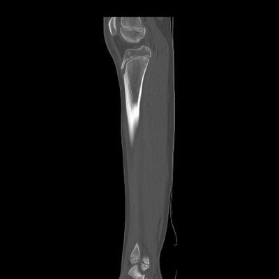 Ostéome ostéoïde cortical postérieur du tibia droit TDM sans injection sagittale fenêtre osseuse