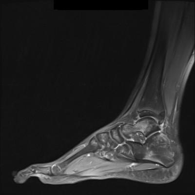 Maladie de Ledderhose/Fibromatose superficielle plantaire IRM Pied gauche sagittal DP FS