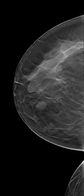 Stable fibroadenomas and hamartoma in the right breast, ACR 2. RCC Tomosynthèse