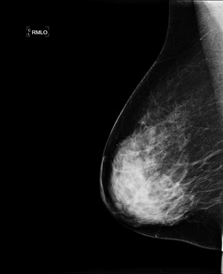 Doubt regarding architectural distortion of the right upper lateral quadrant, corresponding to superimpositions with tomosynthesis. RMLO