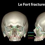 Fractures of skull lefort-fracture-skull-classification