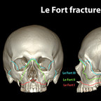 Fractures of skull lefort-fracture-skull-classification