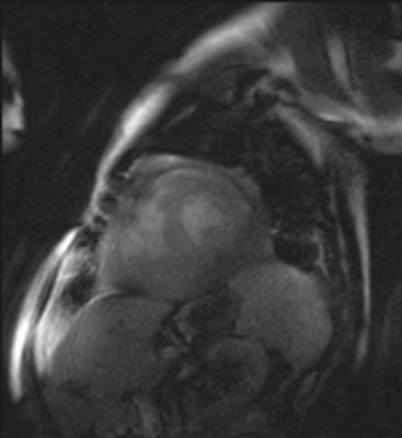 Localisation myocardique d'un lymphome B à grandes cellules trufi_sr_4sl_HF_192