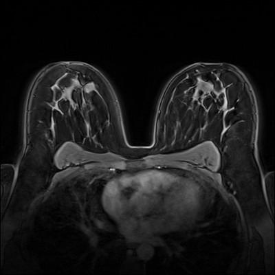 Stable fibroadenomas and hamartoma in the right breast, ACR 2. Dynamique FS 1 min