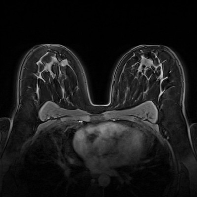 Stable fibroadenomas and hamartoma in the right breast, ACR 2. Dynamique FS 1 min