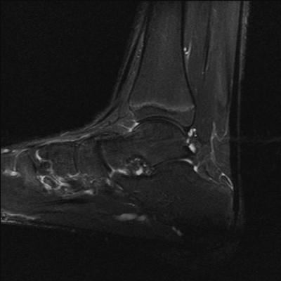 Ostéome ostoïde du bord supéro-médial du dôme talien DP FS Sagittal