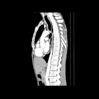 Abcès pulmonaire compliquant un carcinome épidermoïde  TDM Thorax Sagittal Temps artériel