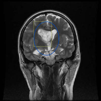 Central neurocytoma  MRI Head Coronal T2w FSE