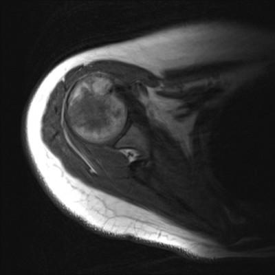 chondroblastome  IRM Membre supérieur Axial Pondération T1