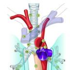 Thoracic lymph node map  - IASLC 2009 thoracic-lymph-node-map-iaslc-2009