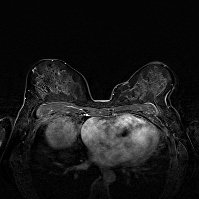 Right upper medial ductal carcinoma in situ Soustraction 4 min