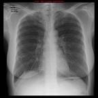 Lymphangioleiomyomatose pulmonaire  Radiographie Thorax Face