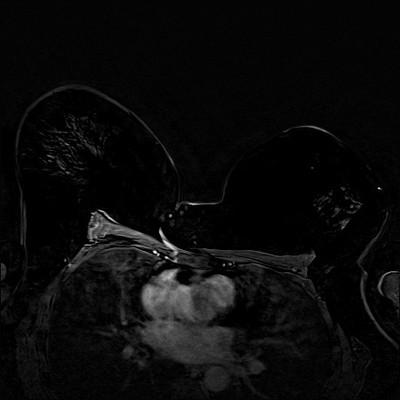 Carcinome canalaire infiltrant de grade SBR 2 Soustraction 3 min