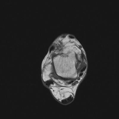 Enthésopathie achiléenne avec clivage intra-tendineux T1 Axial