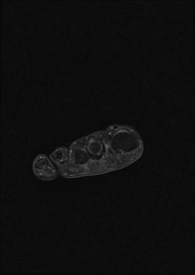 Tendinopathie aiguë achiléenne droite inflammatoire et myoaponévrosite plantaire superficielle DP FS Coronal (Avant pied)