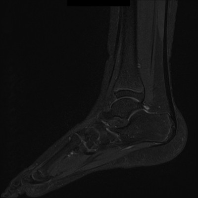 Syndrome de l'os naviculaire accessoire IRM DIXON Sagittale (FS)